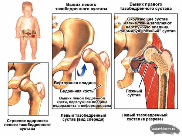 Лечение дисплазии тазобедренного сустава у народных целителей шейный сустав это
